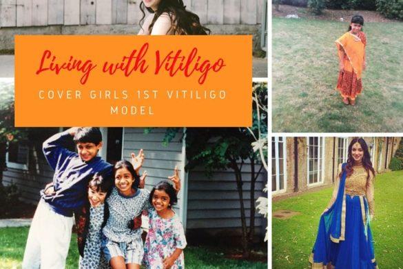 Cover Girl Trublend women with vitiligo
